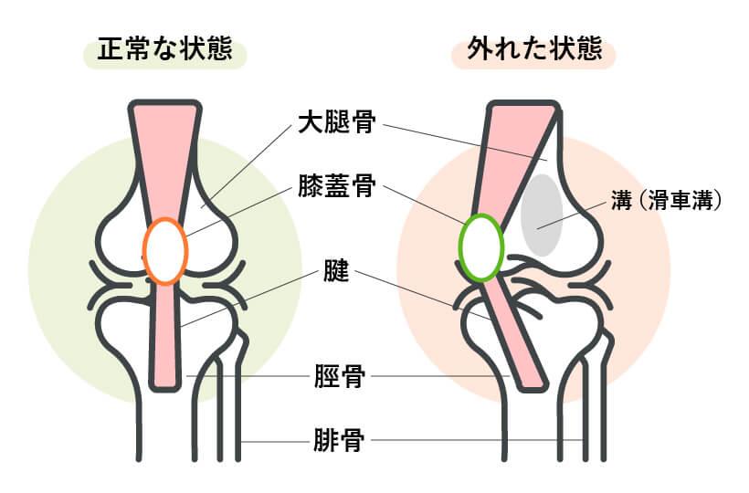 犬の膝蓋骨脱臼(パテラ)の状態